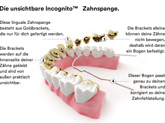 Linguale Zahnspange Lingualtechnik
